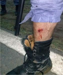 Personal policial lesionado por aborigenes