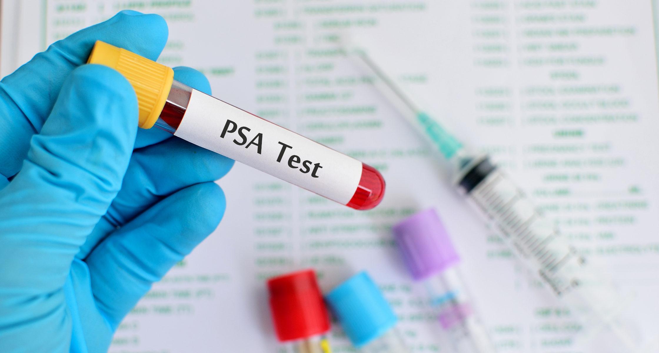 La detección de PSA reduce la mortalidad por cáncer de próstata